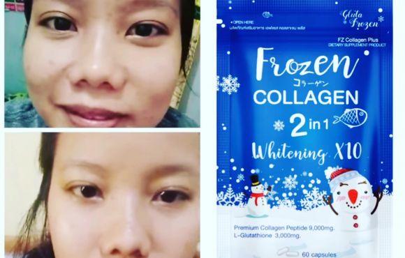 Frozen Collagen/ Glutathione 10x whitening