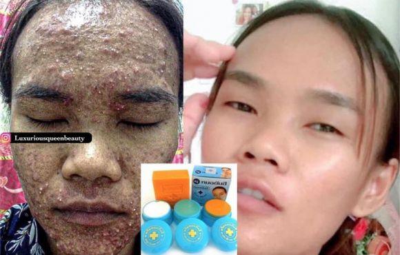 Dr Yanhee kit visage